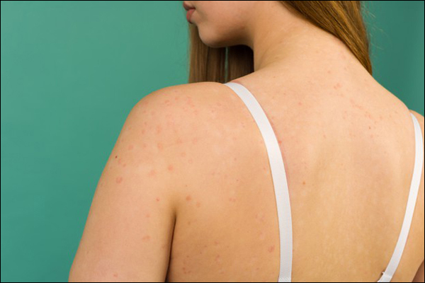 Most Efficient Ancient Herbs To Help You Combat Atopic Dermatitis