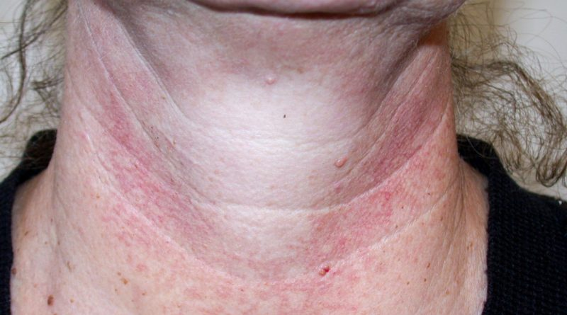 Natural Treatment Of Poikiloderma-Like Cutaneous Amyloidosis