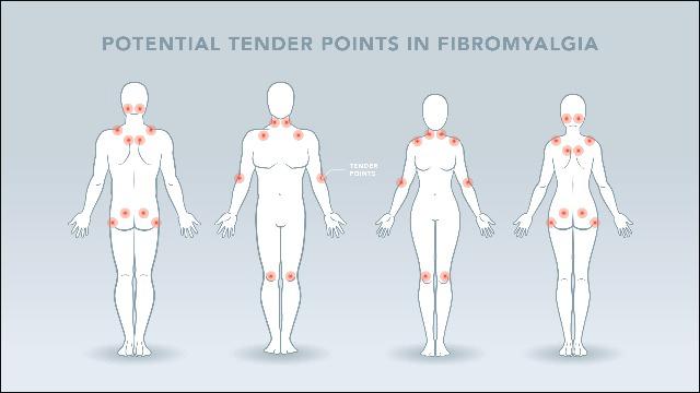 Fibromyalgia Disease