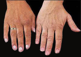 Hemochromatosis Disease