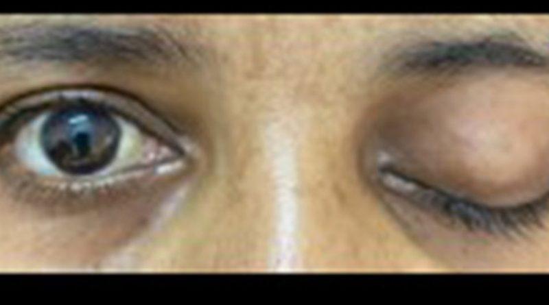 Ayurvedic Treatment of Rhino ocular cerebral mucormycosis