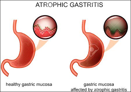 Atrophic Gastritis